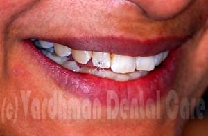 best dentists in Delhi