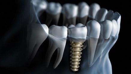 2016-07-29-1469804112-9503073-dentalimplants.jpg